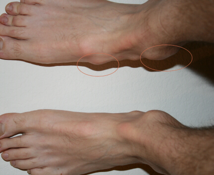 how to fix bone spur on top of foot